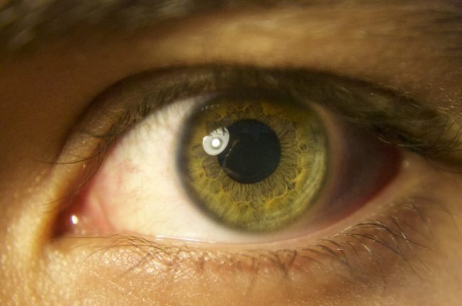 retinita-pigmentara-retinopatia-ar-putea-fi-vindecata-cu-ajutorul-terapiei-genice